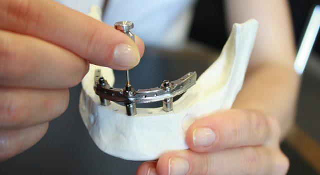 Sistema Trefoil: dientes definitivos en un día