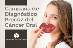 Exámenes gratuitos para prevenir el cáncer oral