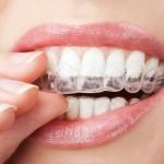 ¿Cómo debo cuidar mi ortodoncia invisible?