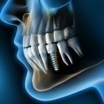 ¿Te duele tu implante dental?