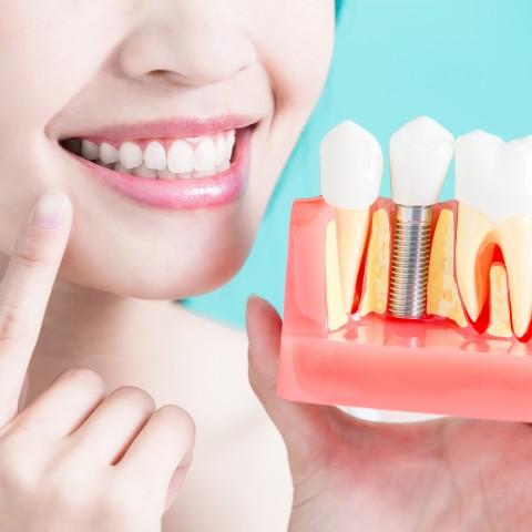 Dudas sobre implantes dentales